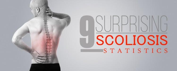9 Surprising Scoliosis Statistics
