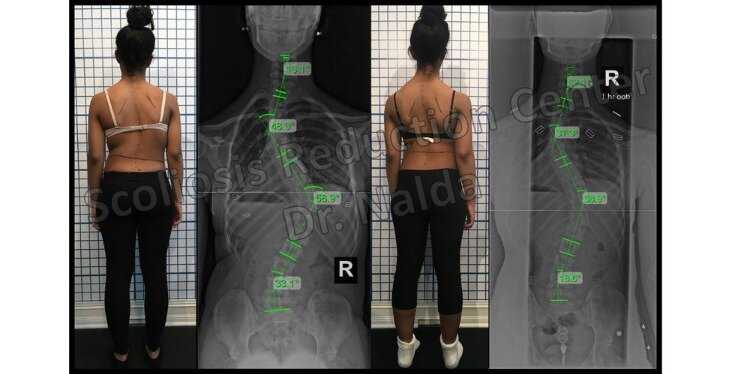 Pre Post Scoliosis Treatment X-Ray
