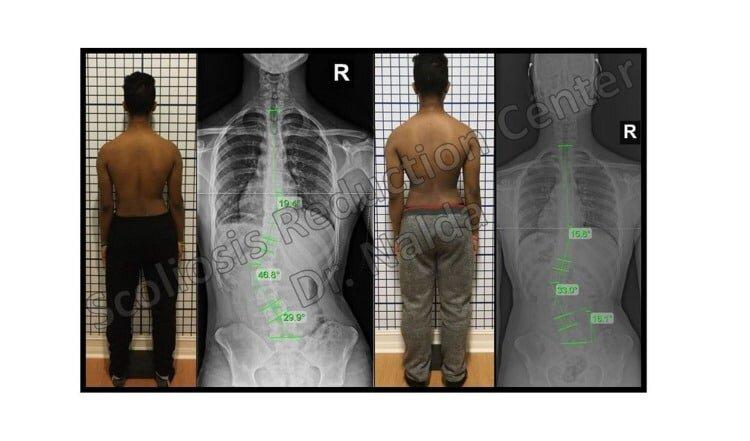 Pre Post Scoliosis Treatment X-Ray