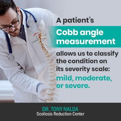 a patients cobb angle measurement