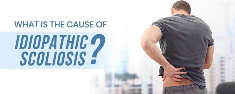 cause of idiopathic scoliosi