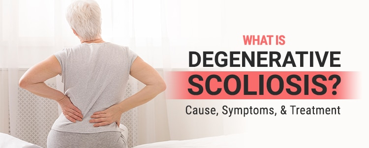 What Is Degenerative Scoliosis? Cause, Symptoms, & Treatment
