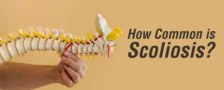 how commoni is scoliosis