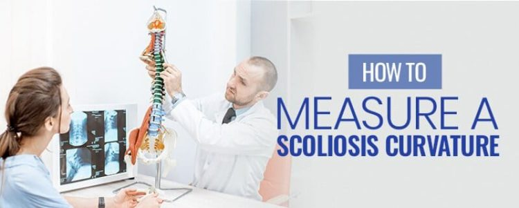 how to measure scoliosis curvature