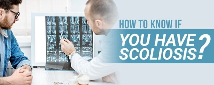 how to Bknow if Byou have scoliosis