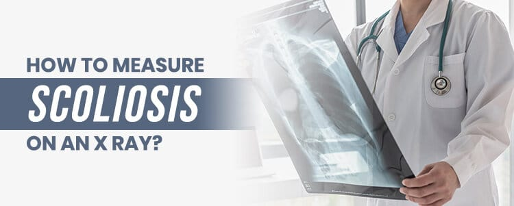 how tomeasure scoliosis on an xray