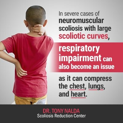 in severe cases of neuromuscular scoliosis