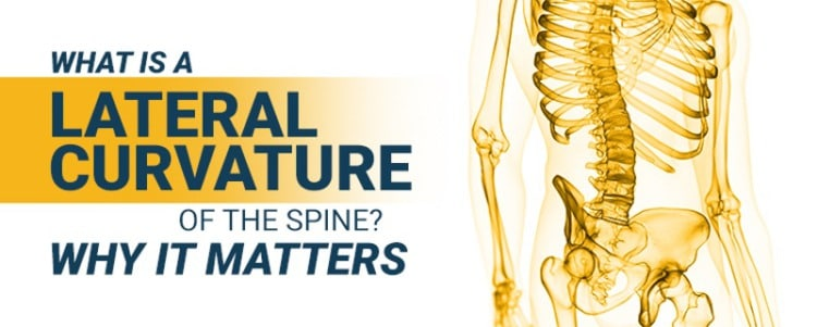 What Is A Lateral Curvature Of The Spine? Why It Matters
