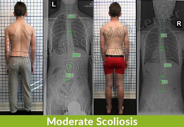 moderate scoliosis reduction