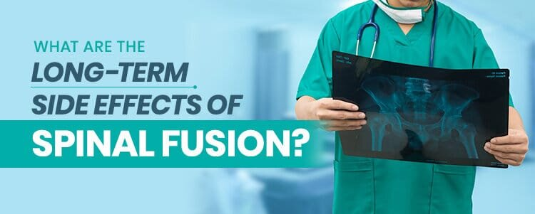 what are the long term side effects of spinal fusion