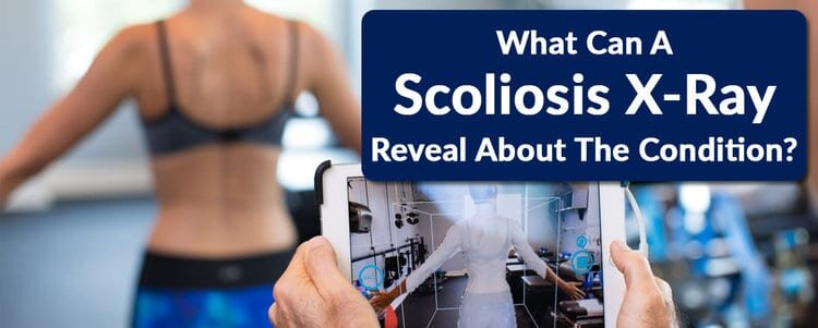 what can a scoliosis xray reveal