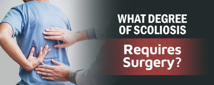 what degre of scoliosis requires surgery