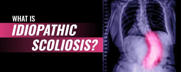 what is idiopathic scoliosis