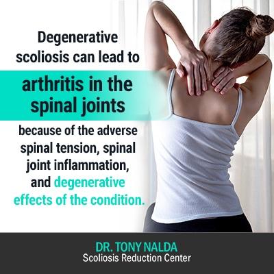 degenerative scoliosis can lead to 400