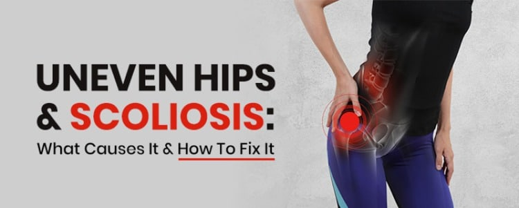 Uneven Hips & Scoliosis: What Causes It & How To Fix It