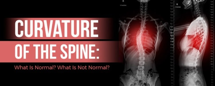 Curvature Of The Spine: What Is Normal? What Is Not Normal?