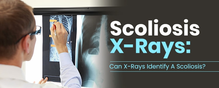 scoliosis x ray