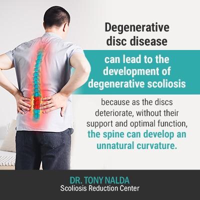 degenerative disc disease can 400