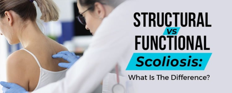 functional scoliosis