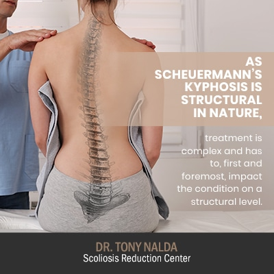 as scheuermanns kyphosis is structural 400