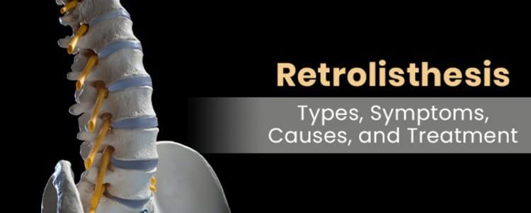 Retrolisthesis: Types, Symptoms, Causes, and Treatment