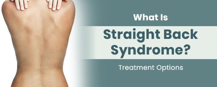 What Is Straight Back Syndrome? Treatment Options